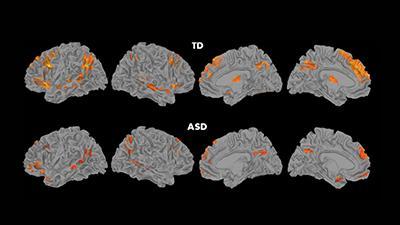 autism-brain.jpg