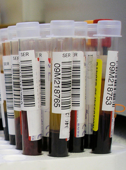Blood_test.jpg