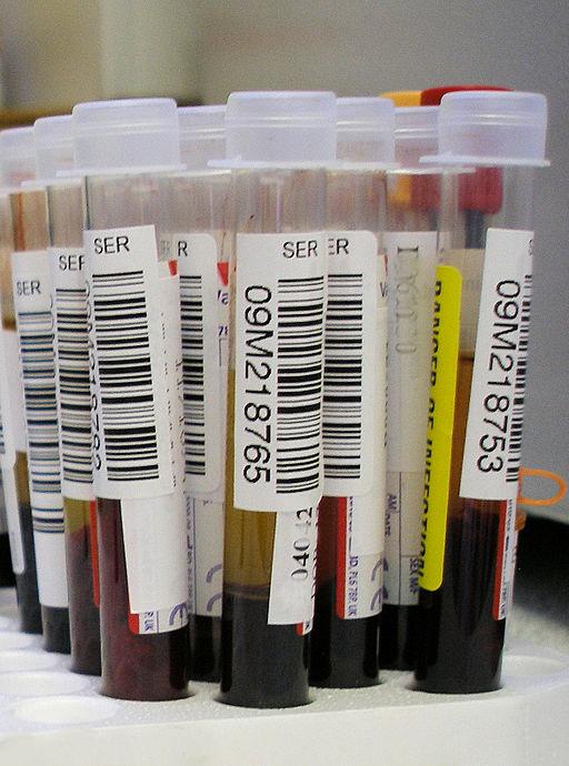 Blood_test.jpg