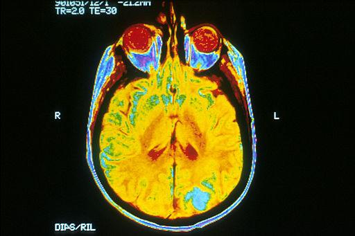 Brain_MRI.jpg