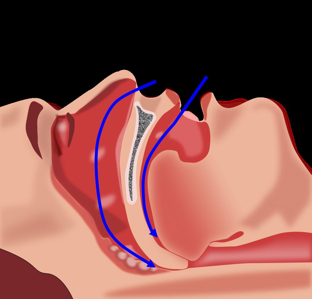 sleep-apnea.png