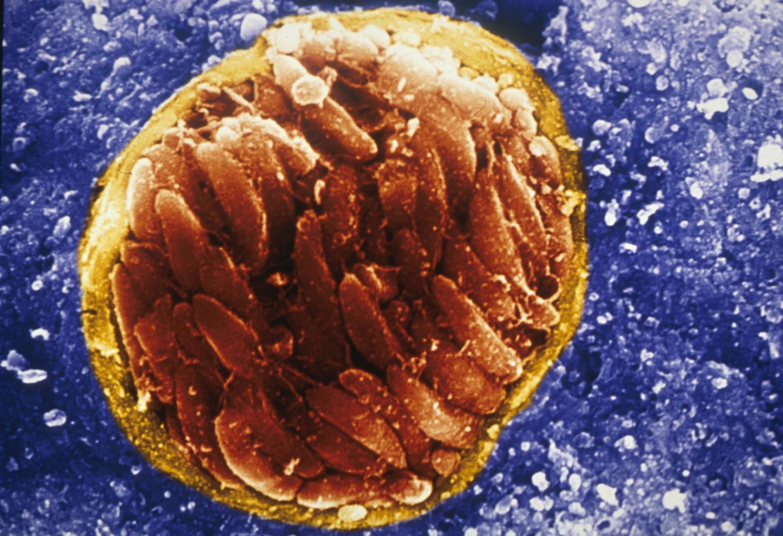 toxoplasmosis.jpg